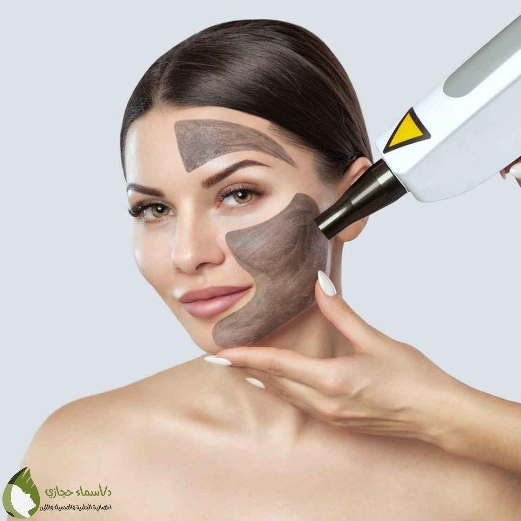 الليزر الكربوني للوجه والابط وإزالة التصبغات بشكل فعال دكتورة أسماء حجازى