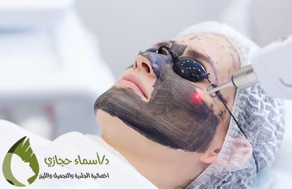 الليزر الكربوني لتقشير الوجه ومتى تظهر نتائج الليزر الكربوني دكتورة أسماء حجازى